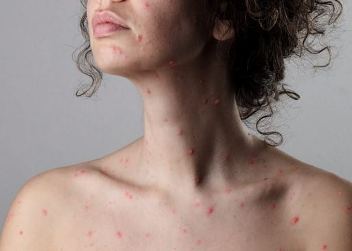 Cuanto dura la varicela en adultos