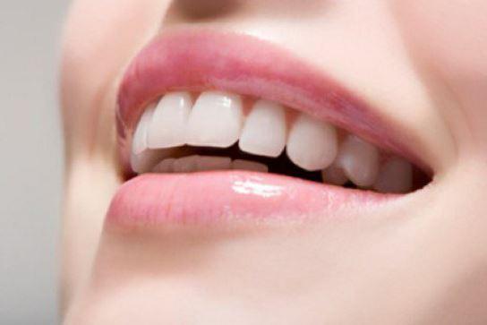 Cuanto dura el blanqueamiento dental