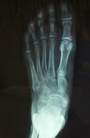 cuantas-radiografias-se-pueden-hacer-por-ano